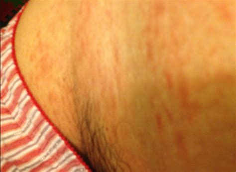 sweat skin thigh sweat rash how to prevent chaffree