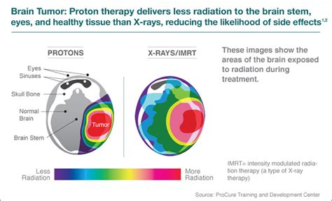 Define A Proton by What Is Proton Therapy Innovative Cancer Care