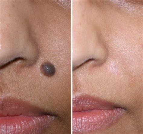 how can you tell if a skin mole is cancerous
