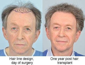 declan donnelly hair transplant testimonials from hair transplant surgery patients at hrbr
