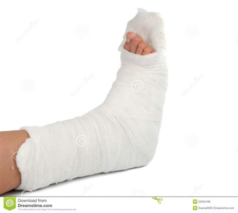cast on leg in a plaster cast royalty free stock images image
