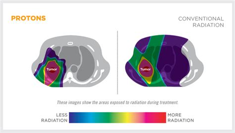 Proton Cancer by Proton Therapy For Lung Cancer Provision Proton Therapy