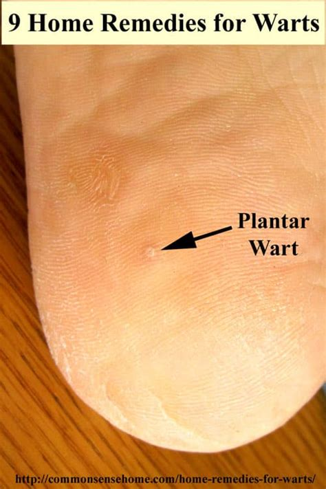 how do you get planters warts home remedies for warts