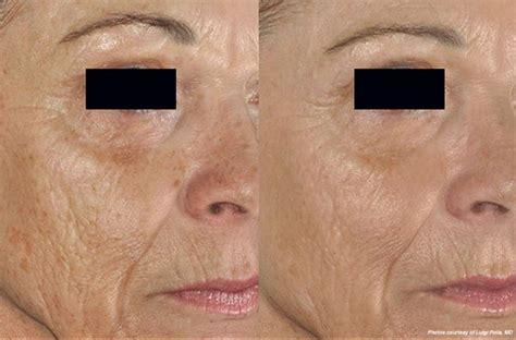 laser skin resurfacing hinsdale laser scar removal