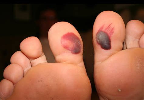 blood blisters do s and dont s blister prevention