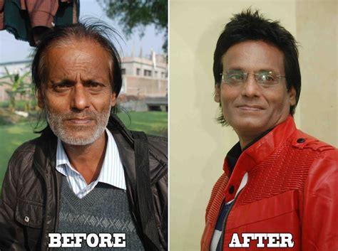 salman khan hair transplant cost shaan khan hair designer salon additional hair