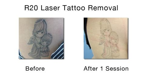 tattoo removal in new york city moving on and getting rid