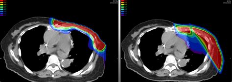 Proton Cancer by Advantages Benefits Of Proton Therapy Scca Proton