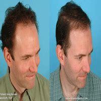 salman khan hair transplant cost hair transplant cost india hair transplantation