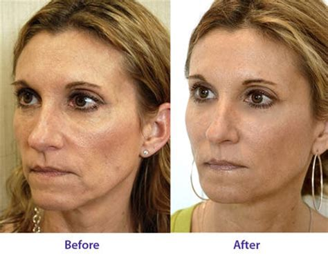 before and after collagen before and after 6 get collagen supplements