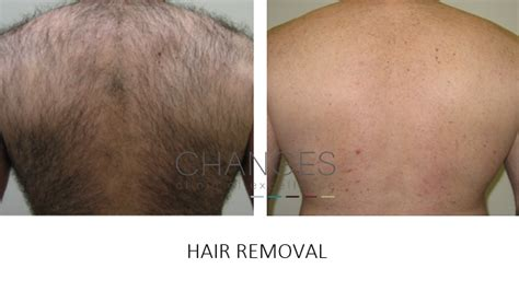 ipl hair removal clinic laser and ipl permanent hair removal in hshire