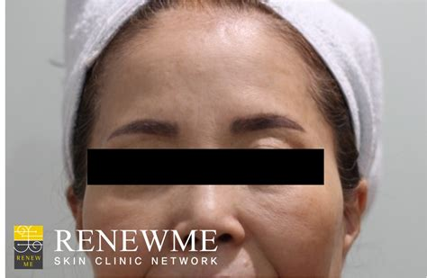 renewme skin clinic eyebrow tattoo removal at renewme