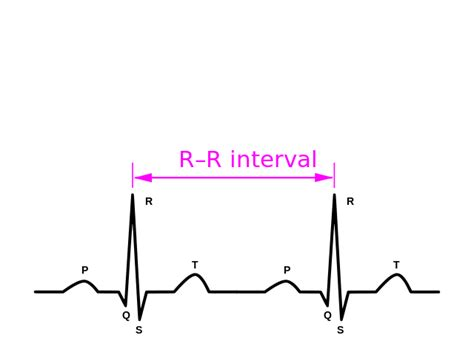 schematic diagram of normal sinus rhythm for a human as seen on two periods forming a