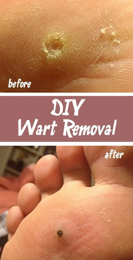 how do you get planters warts the 25 best ideas about plantar wart removal on
