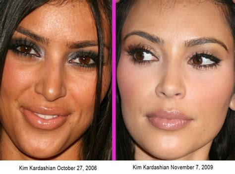 kim kardashian nose job plastic surgery before amp after
