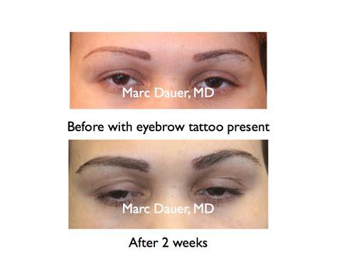 eyebrow transplant spiky hairs eyebrow transplant surgeon los angeles marc dauer md
