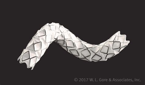 origami stent fda approves balloon expandable stent graft for use