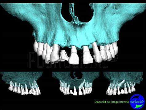 vire teeth vire teeth baby vire teeth eugenol canine incluse et