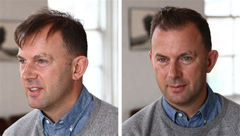 before and after thinning mens haircut how to style thinning hair