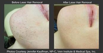 permanent removal of hair