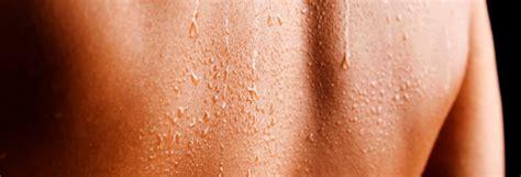 sweat skin academy of hyperhidrosis