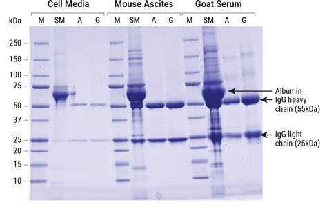 protein g magne 174 protein g and magne 174 protein a