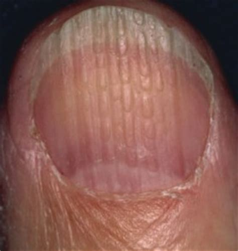 What Fingernail Abnormalities Say About Your Health
