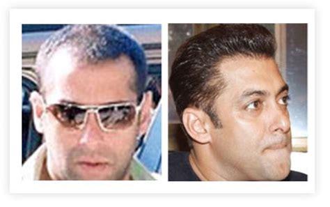 salman khan hair transplant cost celebrity hair transplants in fashion for bald celebrities