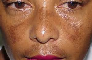 image gallery melasma skin