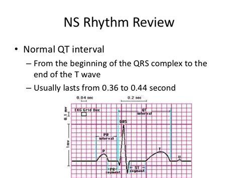normal sinus rhythm
