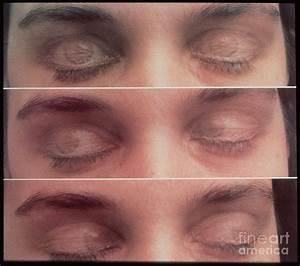 Eye Movement In Rem Sleep Photograph by Allan Hobson
