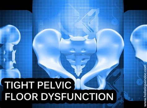 Pelvic Floor Tension Myalgia by 1000 Images About Pelvic Floor Tension Myalgia Pftm On