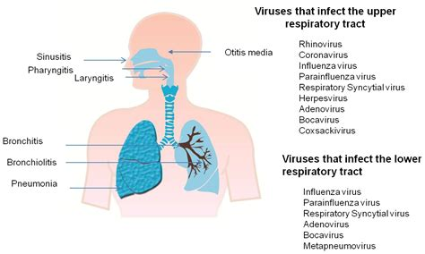 What Is An Upper Respiratory Tract Infection?  Health. Basement Foundation Repair Point Bank Online. Touro College Ot Program Hadoop Hdfs Commands. Torrey Pines Carpet Cleaning Pay Per Click. Interest On Home Loans Glendale School Of Law. With Nolock In Sql Server Loan Secured By Car. Divorce Attorney Corpus Christi. Trade Natural Gas Futures Rehabs In Illinois. Hipaa Compliant Video Conferencing