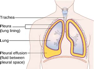 What Is Pleural Effusion?  Definition, Causes, Symptoms. 19 Week Signs Of Stroke. Heaven Signs. Tumblr Drawing Signs. Wall Art Sticker Signs. Tamiflu Signs. Landscaping Signs Of Stroke. Chemical Hazard Signs Of Stroke. Outfit Signs Of Stroke