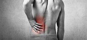 Nyeri Punggung Bawah - Penyebab: Sindrom Akar Saraf ...