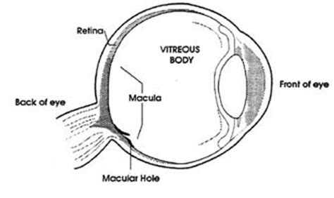 bodywork central vitrectomy surgery and recovery information