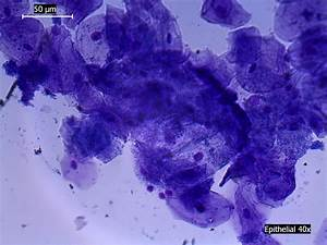 File:Epithelial Cells Human Inside of Mouth, Stained ...