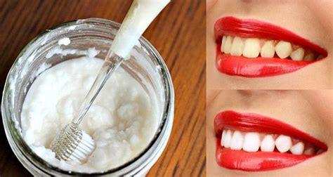 oubliez le dentiste ces 3 astuces simples permettent de vous blanchir les dents 224 la maison