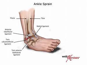 Ankle Sprain | NASM Blog