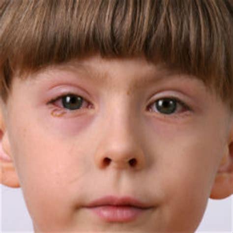 la conjonctivite expliqu 233 e hopital de montreal pour enfants