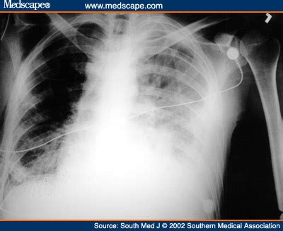thoracoscopic management of pleural effusions in kaposi s sarcom