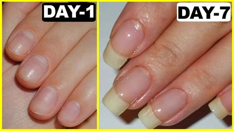 Simple Home Remedies To Grow Your Nails!