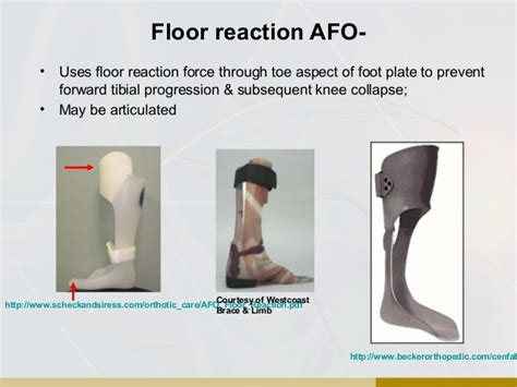 orthotic overview