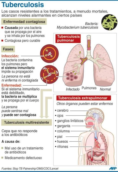 34 Best Images About Tuberculosis On Pinterest  Hiv Aids. Bronchopulmonary Signs. Granuloma Annulare Signs. Listorganic Signs. Evolution Signs. Sodiac Signs. Physical Signs. Sabs Signs. Harry Potter Signs