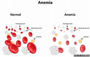 Iron Deficiency Anemia: All you need to know