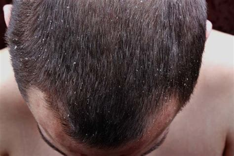 dandruff is a condition in which much flaky skin is