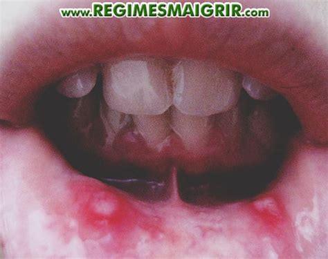 aphte rem 232 de pour soigner l ulc 233 ration dans la bouche ou langue