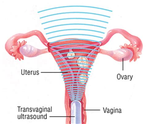 dysfunctional uterine bleeding guide causes symptoms and treatment options