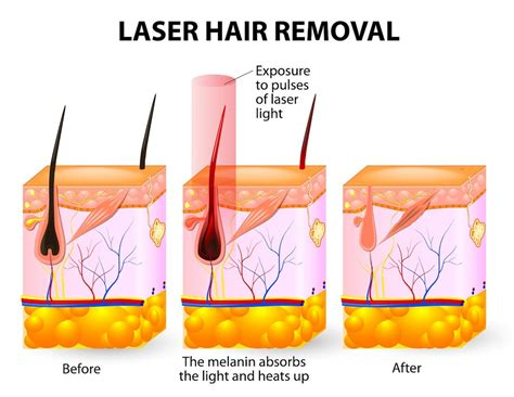 How Does Laser Hair Removal Work?  Women Health Info Blog. Processing Fee For Credit Cards. Rental Company Insurance Okolona Pest Control. A I Dupont High School Phlebotomy Training Az. Manage Wireless Networks Windows 8. Payday Loan No Phone Calls Host Html Website. The Best Logo Design Company. High Quality Scanning Services. Schools For Criminology Call Center Franchise