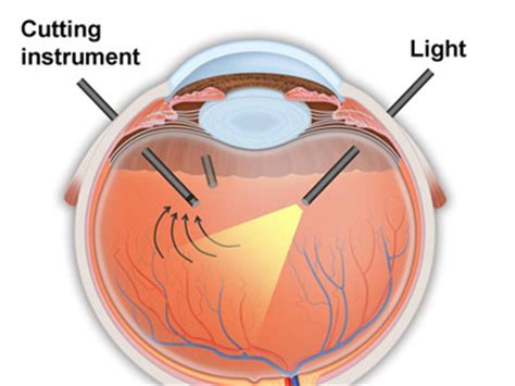 related keywords suggestions for vitrectomy surgery